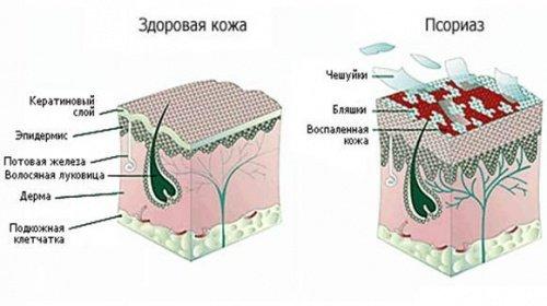 Новые методы лечения псориаза в году
