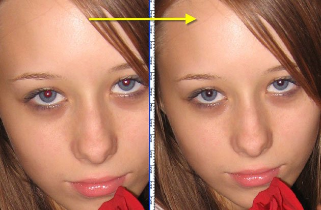 череповце как убрать эффект фотовспышки на глазах жидкость бачка